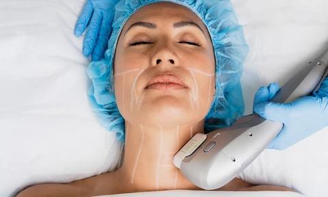 Ultraformer Skin Tightening for neck   The Clinic Bondi Junction