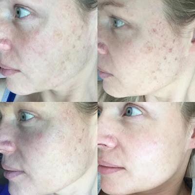 IPL Skin Rejuvenation Treatment Results - The Clinic Bondi Junction