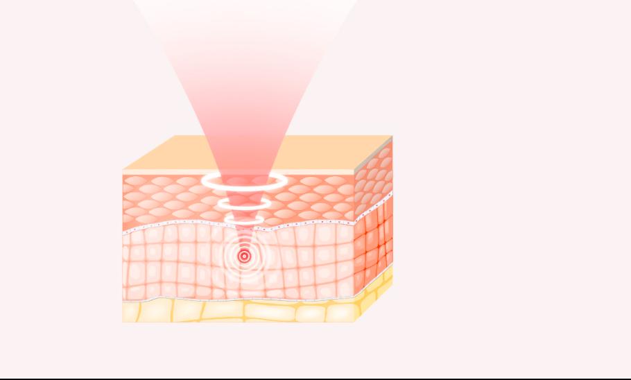 attibe homethera hifu device